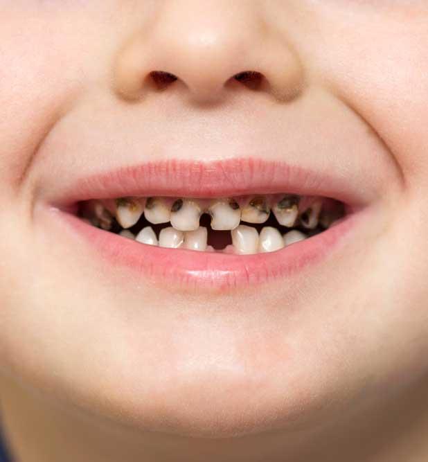 decija-stomatologija1b