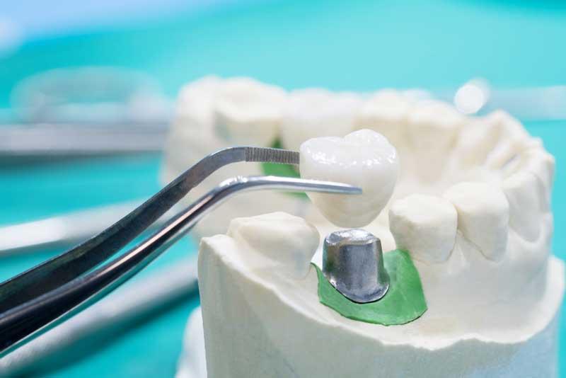 livena-nadogradnja-zuba