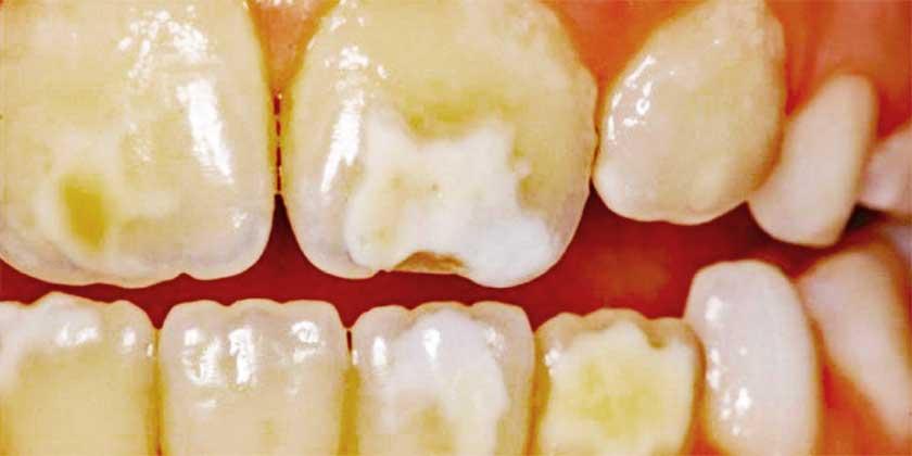 molarno-incizalna-hipoplazija