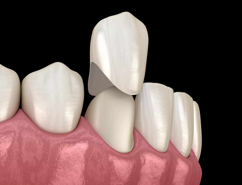 Postavljanje zubnih krunica