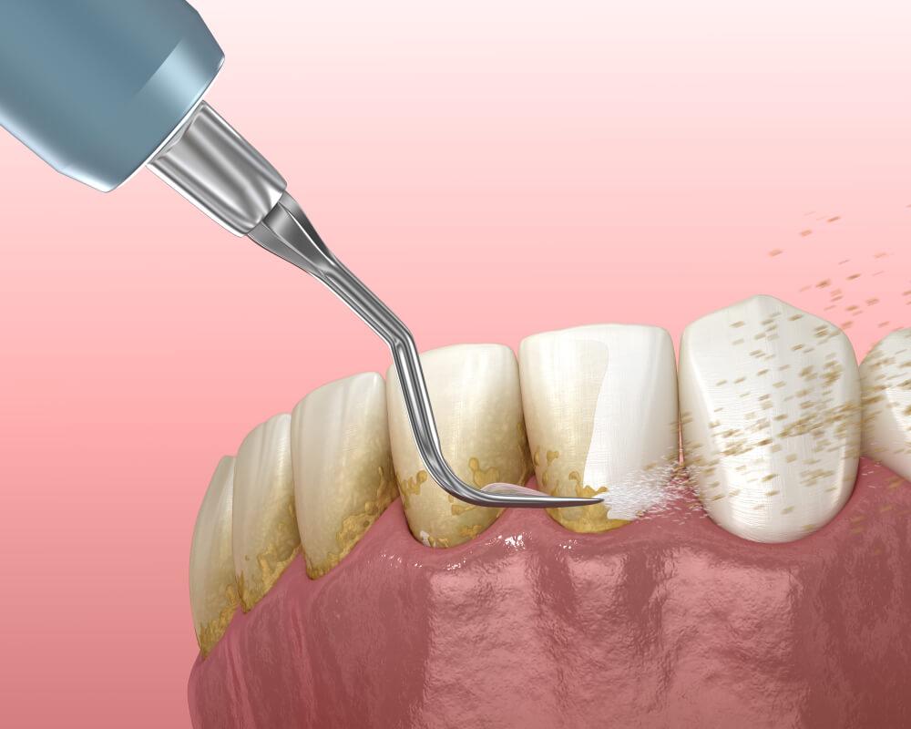 Skidanje zubnog kamenca