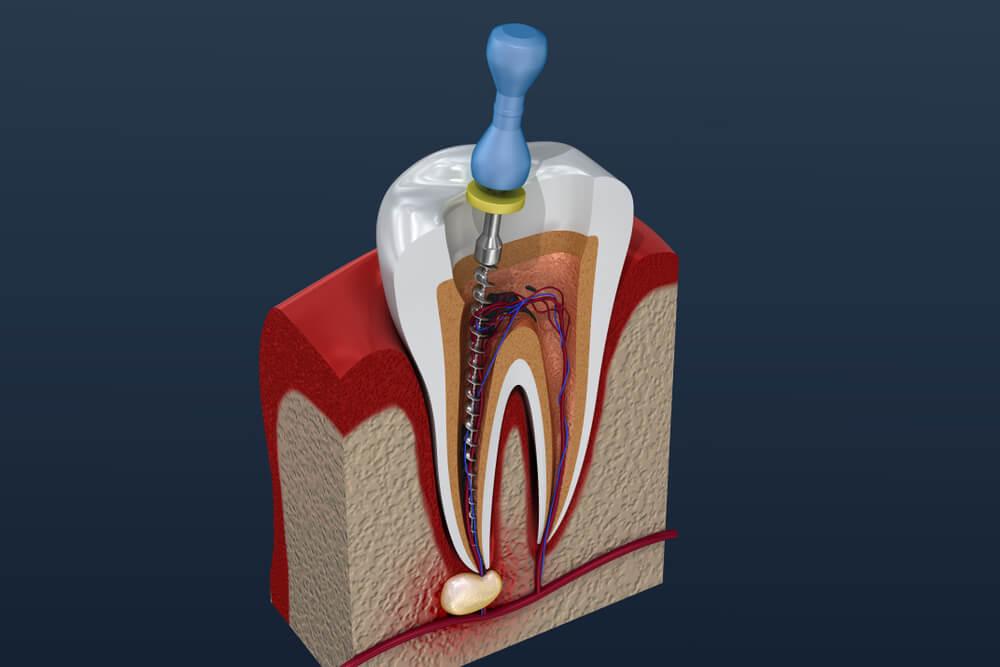Lecenje kanala korena zuba